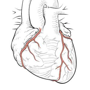 coronary-arteries