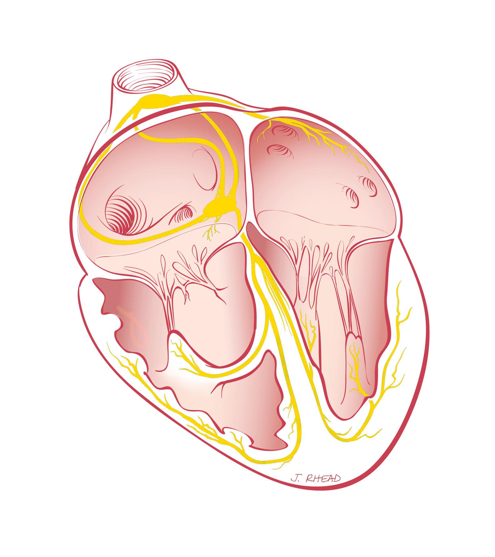 Arrhythmia Heart Care Intermountain Healthcare