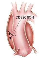 marfan-sydrome-aortic-dissection