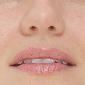 lip augementation