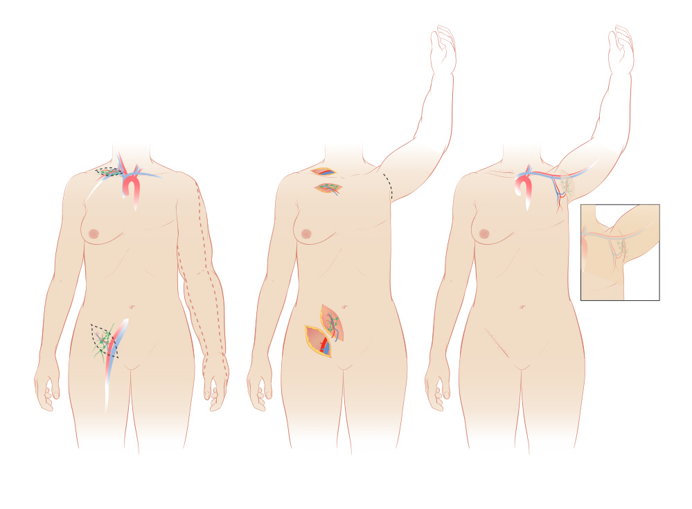 lymphedema-surgery-lymph-node-transfer-lg