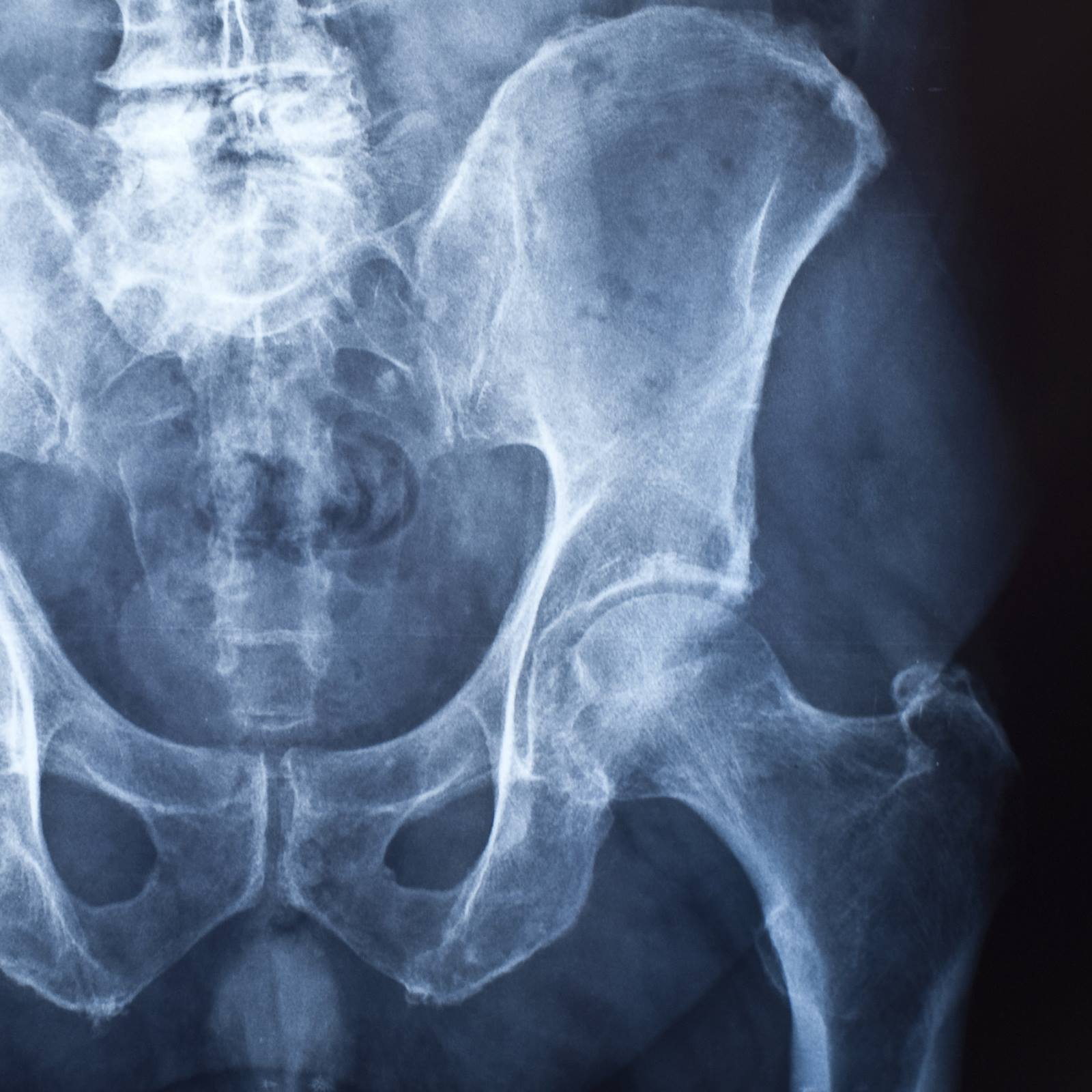 Hip Osteoarthritis   Orthopedics  Osteoarthritis Hip Pain