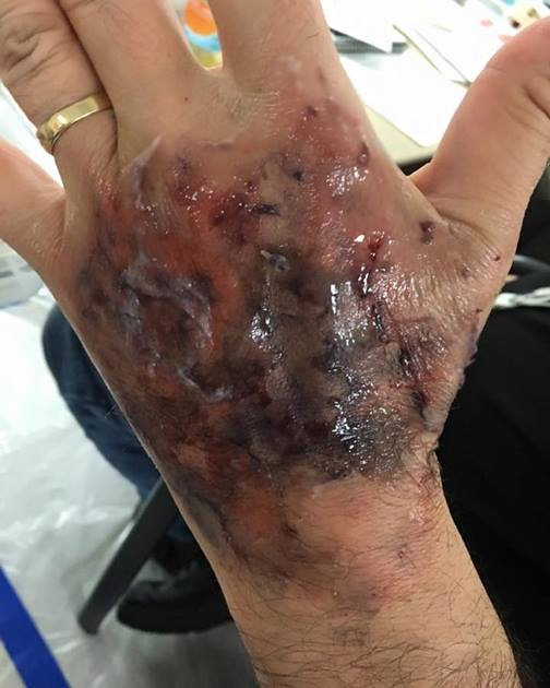 Advanced-Moulage-2-2016-5
