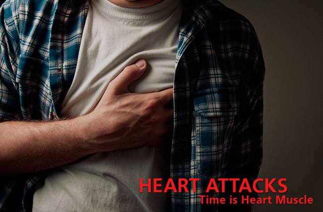Heart-attack-stemi-time-treatment