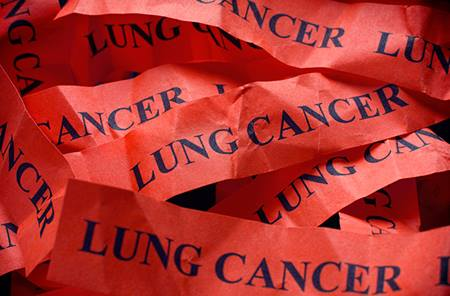 Lung_cancer_Screening