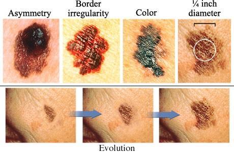 Summer Skin Cancer Awareness