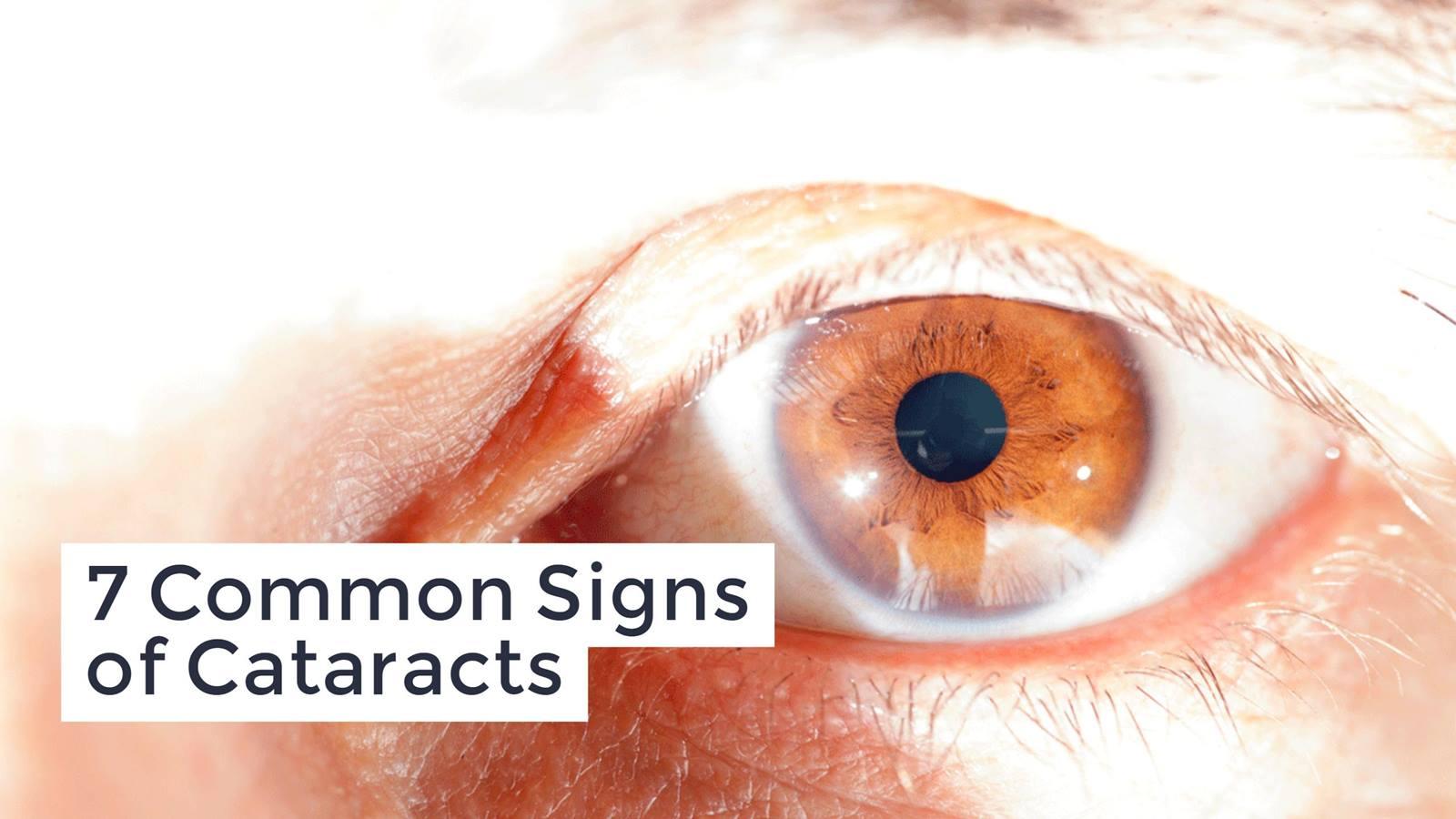 Natural Eye Health