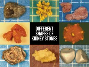 Different Shapes of Kidney Stones
