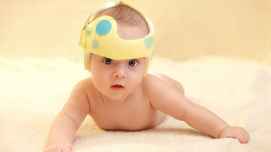 Does my infant need a helmet