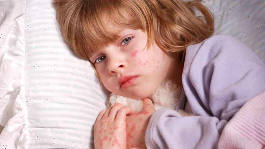 Does my child need treatment for their rash