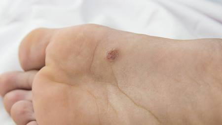 Plantar warts treatment and causes