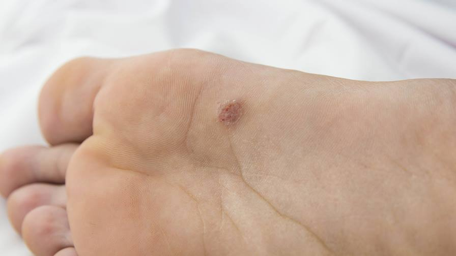 Image result for early stage hpv warts
