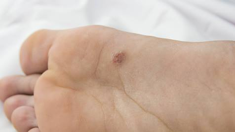 Hpv warts on the feet. Hpv warts on feet - Wart on foot sole