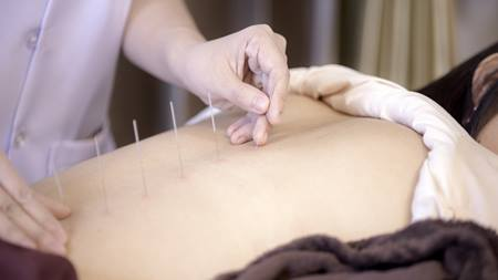 Why I Love Acupuncture