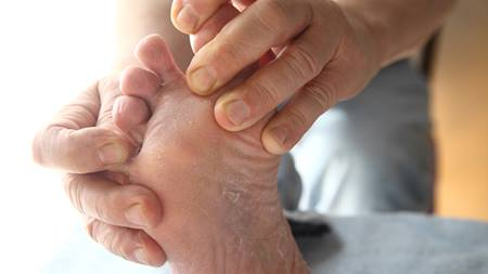How to Treat Athletes Foot At Home