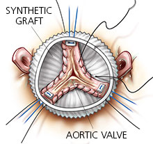 spared-aortic-valve