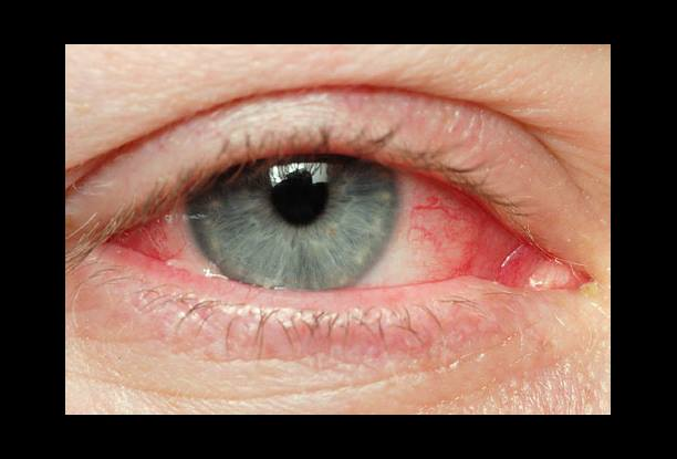 red eyes by allergic conjunctivitis pinkeye