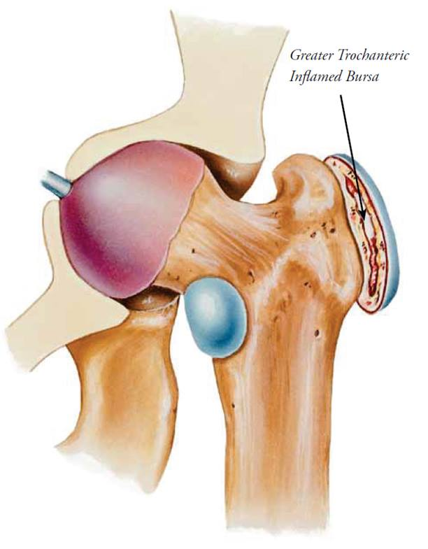 what is greater trochanteric hip syndrome