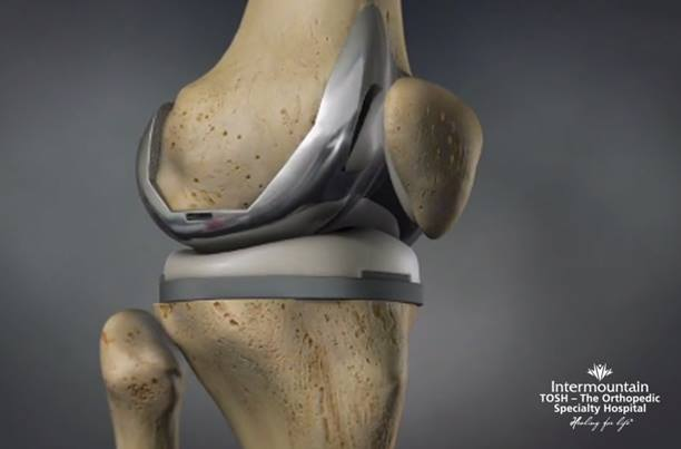 Total_Knee_Replacement_TKA-TOSH