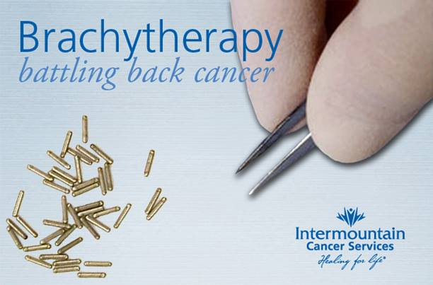 Brachytherapy is an alternative to general radiation