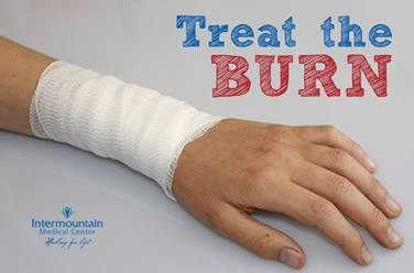 Treat-the-burn-blog-image