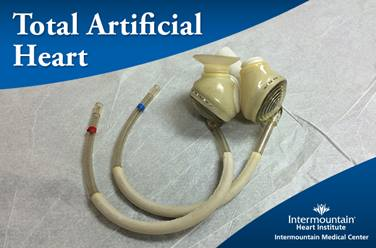 SynCardia-Total-Artificial-Heart