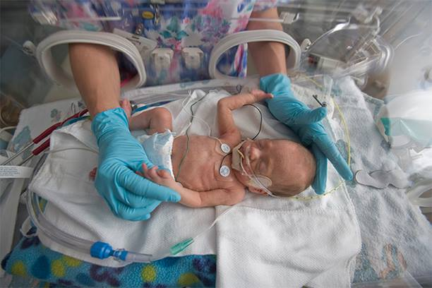 Preterm_birth
