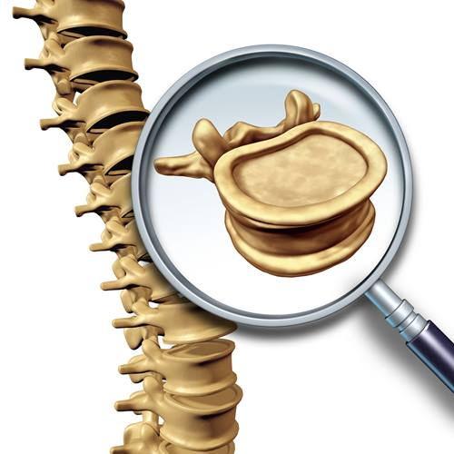 Spine-ThinkstockPhotos-491410806